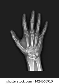 film x-ray hand radiograph show normal human anatomy of wrist, hand, finger bone and joint (carpal, metacarpal, pharynx and interpharyngeal). Medical concept,many other X ray images in my portfolio.