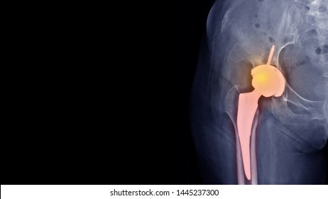 Film x-ray hip radiograph showing osteoarthritis disease(OA hip) treated by total hip replacement (THR) surgery and free copy space. Highlight on joint prosthesis.  medical technology concept.