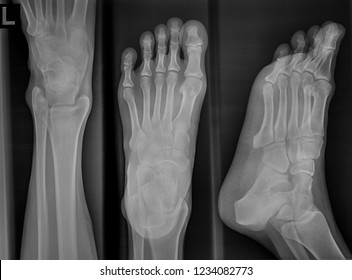 Film xray image of human foot in black and white