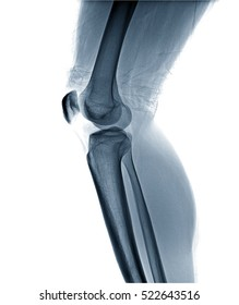 Film x-ray knee AP/lateral : Osteoarthritis knee (Inflammation at knee) , side view , isolate on white background