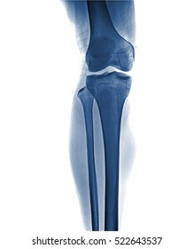 Film x-ray knee AP/lateral : Osteoarthritis knee (Inflammation at knee) , front view , isolate on white background
