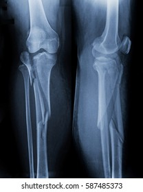 Film x-ray knee include leg (AP,LAT view) : Comminutted fractures at lateral tibial plateau extending to mid tibial shaft.