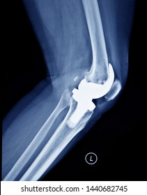 Film x-ray knee joints , human knee joints