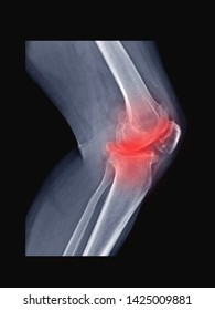 film x-ray  knee radiograph show arthritis disease (osteoarthritis or OA knee disorder) which cause knee pain, stiffness and walking problem.