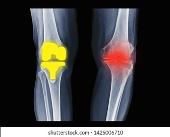 film X-ray knee radiograph showing bilateral degenerative osteoarthritis (OA knee). Right side treated by total knee replacement(TKR) or joint prosthesis. Left showing progressive disease.