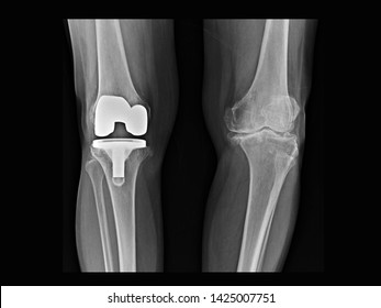 film X-ray knee radiograph showing bilateral osteoarthritis disease (OA knee). Right side treated by total knee replacement(TKR) or joint prosthesis. Left showing progressive disease.