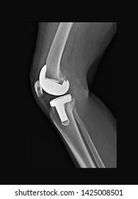 film x-ray  knee radiograph showing osteoarthritis disease (OA knee) treated by total knee replacement(TKR). Medical technology concept. Many other X ray images in my portfolio.