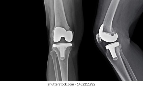Film X-ray knee radiograph showing degenerative osteoarthritis (OA knee disorder) treated by total knee replacement surgery ( TKR ) or joint prosthesis and free copy space. Medical technology concept.