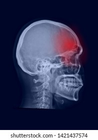 film x-ray radiograph of skull show normal anatomy.The patient has headache symptom from migraine disease. red highlight on painful area. Medical concept. Many other X ray images in my portfolio.