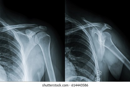 Film x-ray shoulder (AP , transcapular view) oblique view : No definite fracture or dislocation