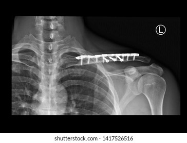 film x-ray shoulder radiograph showing fracture clavicle bone after traffic accident. The patient treated by open reduction internal fixation (ORIF) with plate and screws. medical imaging concept