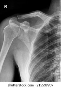 Film X-ray show  fracture clavicle