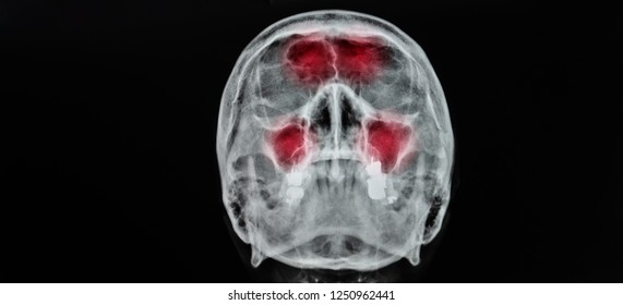 Film x-ray skull AP/ anteroposterior in case of sinusitis. The study shown infection and inflammation at frontal sinus , ethmoid sinus , maxillary sinus on dark background with copy space