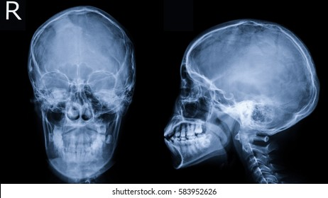 Film x-ray Skull (AP,LAT view) : show human's skull