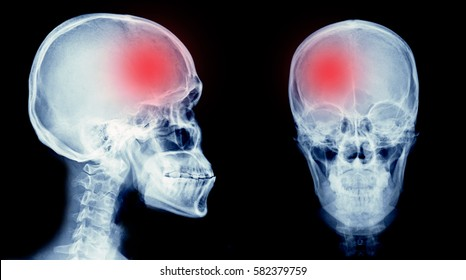 film x-ray skull of human with cerebrovascular accident area or hemorrhage stroke.