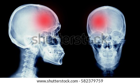 film xray skull human cerebrovascular accident stock photo edit now