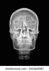 film x-ray skull radiograph show normal human anatomy of skull, facial, sinus, teeth bone and joint (frontal, ethmoid, maxilla, mandible). Medical concept,many other X ray images in my portfolio.