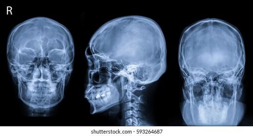 Film x-ray Skull Series (AP,LAT,Towne's view) : show human's skull