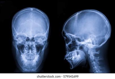 Film x-ray Skull : show normal human's skull