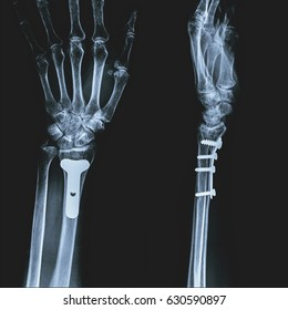 Film x-ray wrist (AP, Lateral view) : Old fracture distal radius S/P plate & screw fixation with good alignment