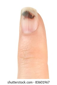Finger with Bruised Nail (Subungual Hematoma) on White Background)