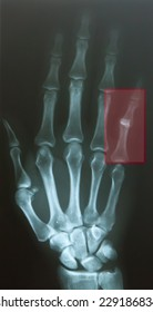 Finger dislocate after accident