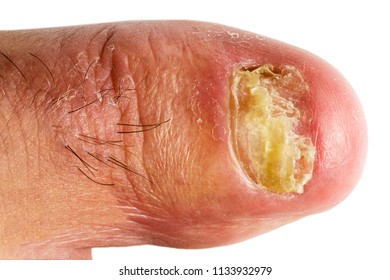 finger nail  with fungal infections onychomycosis , white background