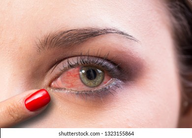 Finger pointing redness in woman eye caused by pollen allergy