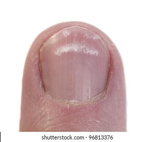 Fingernail closeup with the condition called leukonychia, white lines under the nail.