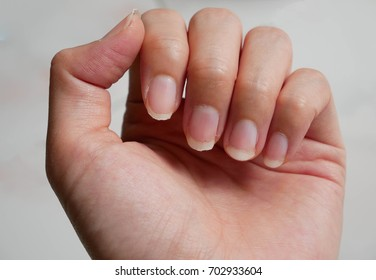 fingernail lack of nutrients and do not make nail not shape and not care, this image can be use for health care concept