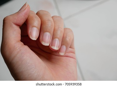 Fingernail Lack Of Nutrients On White Background Do Not Make Nails Care