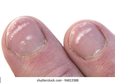 Fingernails closeup with the condition called leukonychia, white lines under the nail.