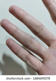 Fingers dry skin problem with Eczema Dermatitis. Hand skin peeling  can treat with rich moisturizer. Dermatology clinic can help this problem.