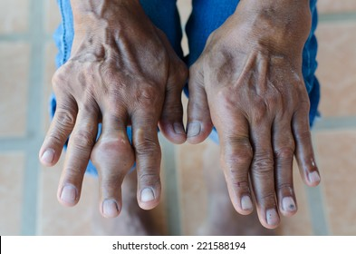 Fingers of patient with gout.