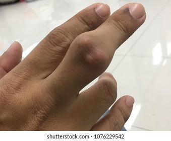 Fingers with severe gout.Finger pain with severe gout in men.