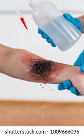 First Aid Training - Burn injury. First aid course.