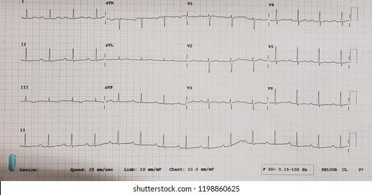 First degree av block. Normal sinus rhythm.
