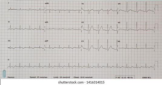 First degree AV block. Sinus rhythm.