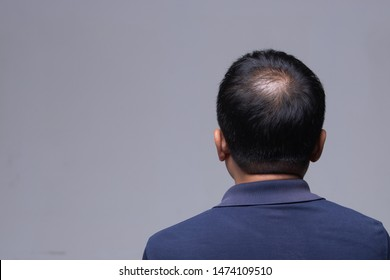 First stage of Hair loss falling on Middle age working man, back side view of sitting male with hair therapy problem, studio lighting gray background copy space