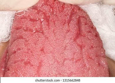 Fissured tongue examination