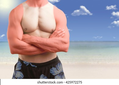 Fit man standing shirtless with his arms crossed in a beach with a sunburn