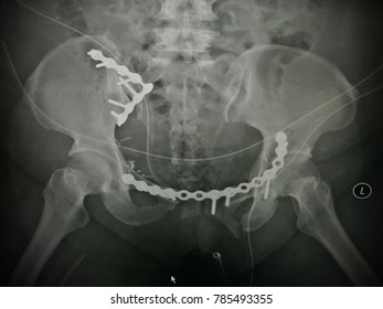 fixation for open book pelvic fracture