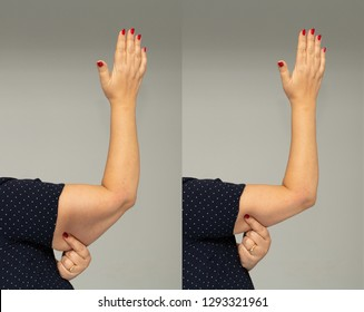Flabbiness on woman arm before and after slimming diet