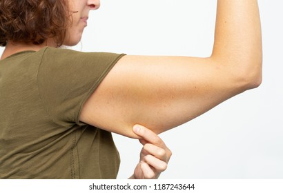 Flabby skin on arm after weight loss