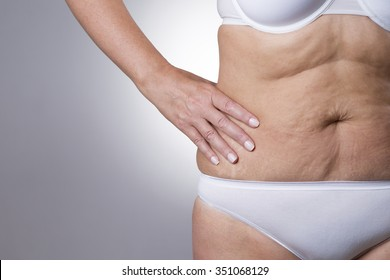 Flabby stomach of an elderly woman close-up on a gray background