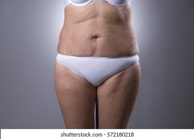 Flabby woman's belly with stretch marks on gray background