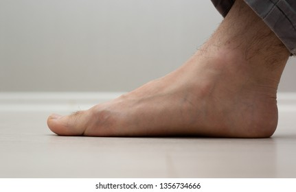 Flat Feet Images, Stock Photos & Vectors | Shutterstock