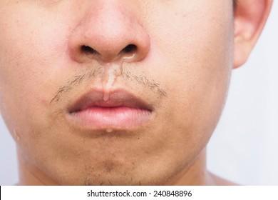 Flu cause sneezing and running nose