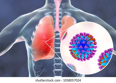 Flu viruses in human lungs, 3D illustration showing anatomy of human respiratory system and close-up view of influenza virus inside lungs
