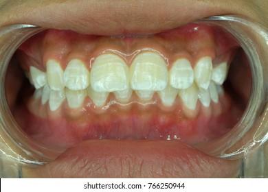 fluorosis in female teeth